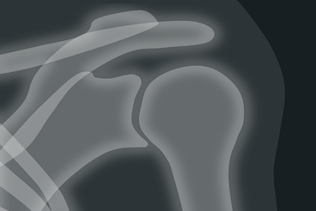 schultergelenk x ray1 Kopie